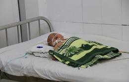 Bé trai 5 tháng tuổi mắc bệnh viêm não mô cầu