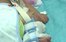 Bé sơ sinh ở An Giang bị gãy xương đùi do dị tật bẩm sinh?