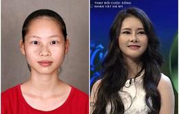 Change Life - Thay đổi cuộc sống: Cô sinh viên công nghệ thông tin lột xác nhờ xóa vết chàm
