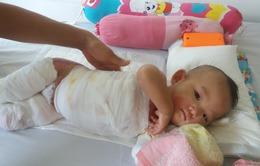 Thương cháu bé 11 tháng tuổi bị bỏng nước sôi nặng