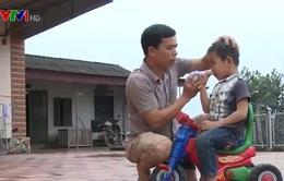 Thái Nguyên: Người bị chó dại cắn gia tăng
