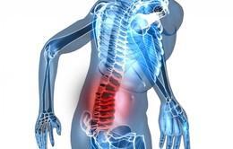 Điều trị hiệu quả chứng đau lưng bằng y học cổ truyền