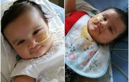Mỹ: Phẫu thuật tách rời cặp song sinh dính liền hiếm gặp