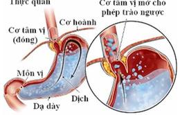 Tìm hiểu về bệnh trào ngược dạ dày - thực quản