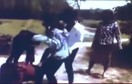 Hà Tĩnh: Bị đánh hội đồng, nữ sinh lớp 12 phải nhập viện