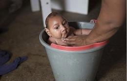 Gia tăng trẻ sơ sinh bị tật đầu nhỏ ở Brazil