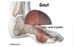 Vì sao bệnh gout bùng phát mạnh vào mùa xuân?