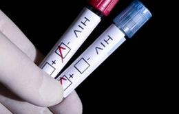 Gần 1% người Nga có kết quả dương tính với HIV