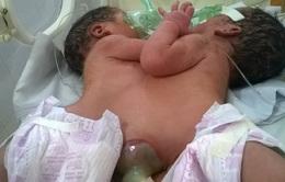 Hà Giang: Cặp song sinh dính liền từ ngực tới bụng