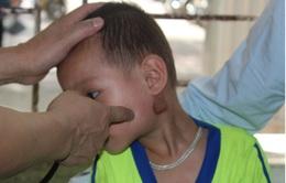 Nghệ An gia tăng trẻ mắc bệnh quai bị