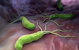 Viêm loét dạ dày có nhiễm khuẩn HP: Tác hại và đường lây nhiễm