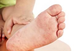 Cách nhận biết sớm và chăm sóc đúng cách trẻ mắc tay chân miệng