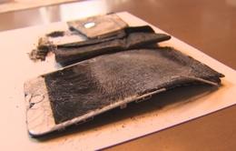 iPhone 6S phát nổ khiến người dùng bỏng nặng