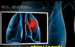 Phát hiện và điều trị sớm bệnh lao