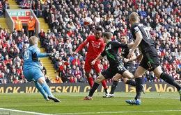 Liverpool - Stoke City: Sức ép phải thắng (00h15 ngày 28/12)