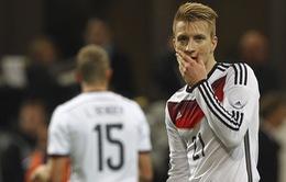 EURO 2016: Marco Reus – Sự vắng mặt đáng tiếc với các CĐV