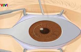 Người mắc cận thị cao cần được theo dõi, khám định kỳ