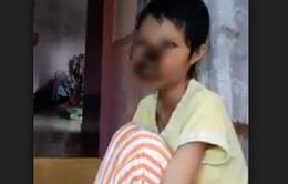 Cô gái hoại tử mặt nghi do chữa trị không đúng cách