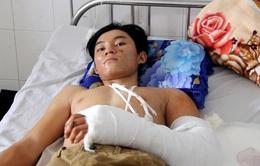 Thanh niên bị máy hút lúa cuốn tại Cần Thơ không phải tháo khớp tay