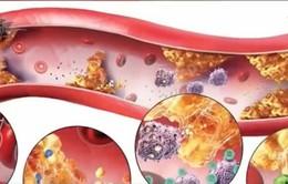 Hạt nano giúp điều trị các tổn thương mạch máu