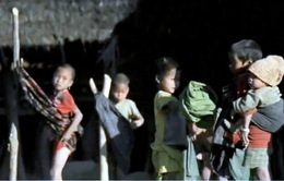 Dịch sởi hoành hành tại Myanmar, 30 trẻ em tử vong