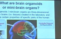 Singapore phát triển não giữa của người từ tế bào gốc
