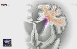 Phát hiện mới về não trẻ sơ sinh