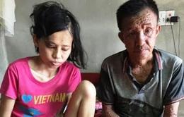 Kinh hoàng trước khối u khổng lồ ở bắp chân của cô gái trẻ đáng thương