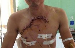 Cứu sống bệnh nhân TNGT bị lộ tim, phổi ra ngoài thành ngực