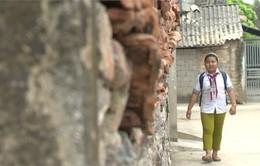 Nghị lực vượt lên số phận của cô bé nghèo bị mắc bệnh viêm thận lupus