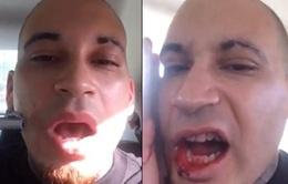 Rapper người Mỹ tự bắn súng vào mặt mình để nổi tiếng