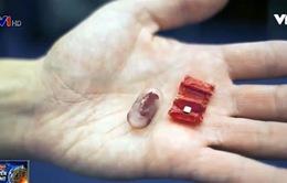 Robot Origami hỗ trợ gắp dị vật trong dạ dày