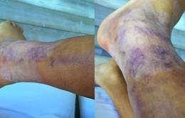 Alexis Sanchez khoe chấn thương ghê rợn trên mạng xã hội