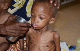 Gần 1 triệu trẻ em  châu Phi bị suy dinh dưỡng