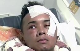 Colombia: Sống sót ngoạn mục sau khi bị đâm xuyên mắt thủng não