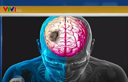 Hướng dẫn quan trọng trong xử trí tai biến mạch máu não