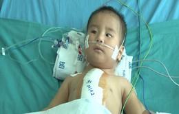 Tìm lại sự sống cho cháu bé 1 tuổi bị bệnh tim bẩm sinh