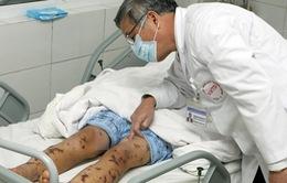 Hà Nội ghi nhận ca viêm não mô cầu đầu tiên năm 2016