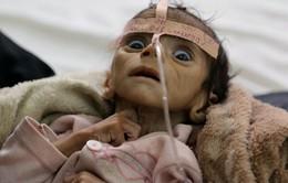 Nỗi ám ảnh phía sau bức ảnh bé trai chết đói tại Yemen