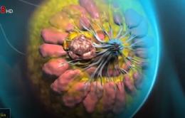 Tầm soát để phát hiện sớm bệnh ung thư vú
