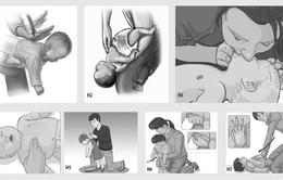 Cách sơ cứu dị vật đường thở trước khi đến cơ sở y tế