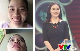 """Change Life: Cô gái răng hô bị gia đình bạn trai chối từ """"biến hình"""" thành búp bê"""