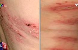 Dấu hiệu phân biệt bệnh viêm da do kiến ba khoang và Zona