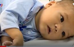 Nỗi đau của em nhỏ 9 tháng tuổi phải trải qua hai lần phẫu thuật tim