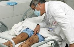 Viêm não mô cầu lây qua đường hô hấp có nguy cơ tử vong cao