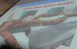 TPHCM: Cứu sống bệnh nhân bị bỏng nặng vì hút thuốc gần bình xăng