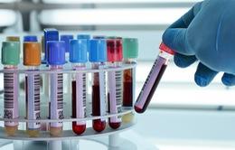 Ứng dụng kỹ thuật phân tử trong xét nghiệm máu sàng lọc virus