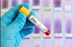 200 mẫu bệnh phẩm âm tính với virus Zika