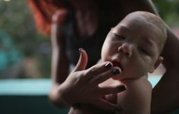 Em bé Việt có dị tật bẩm sinh nghi mắc chứng đầu nhỏ
