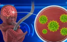 Thêm bằng chứng liên hệ virus Zika với rối loạn thần kinh